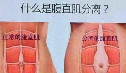 互动吧-产后腹直肌分裂恢复训练